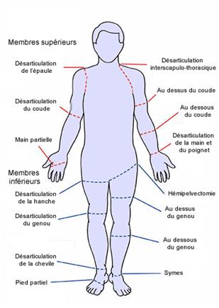 prothèse scellée du poignet