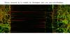 Réseau neuronal de la maladie de Huntington dans une puce microfluidique